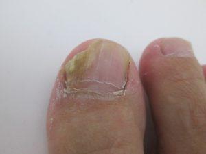 爪水虫の写真・画像